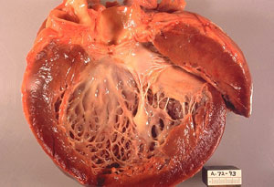 Myocarditis Inflammation
