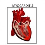Definition of Myocarditis